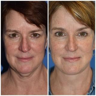 Facelift Surgery Seattle WA